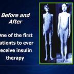 Insuliiniresistenssi – kaikkien elintasosairauksien äiti, osa 2